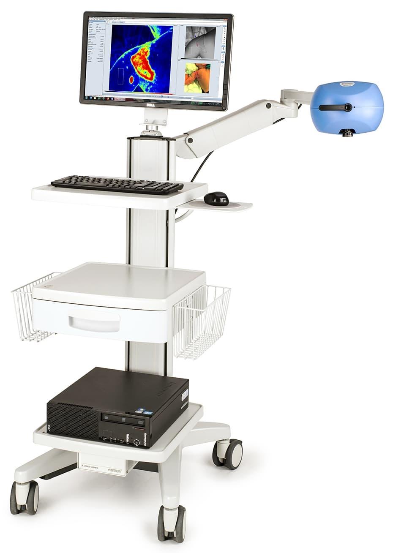 Sistema PeriCam PSI - Ustioni, valutazione accurata