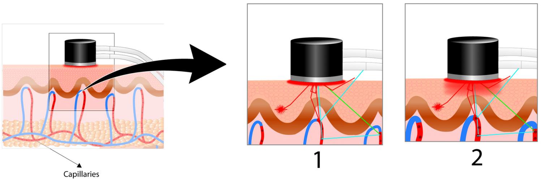 Laser Doppler a Controllo Termico